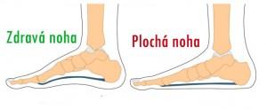 zdrava_plocha_noha