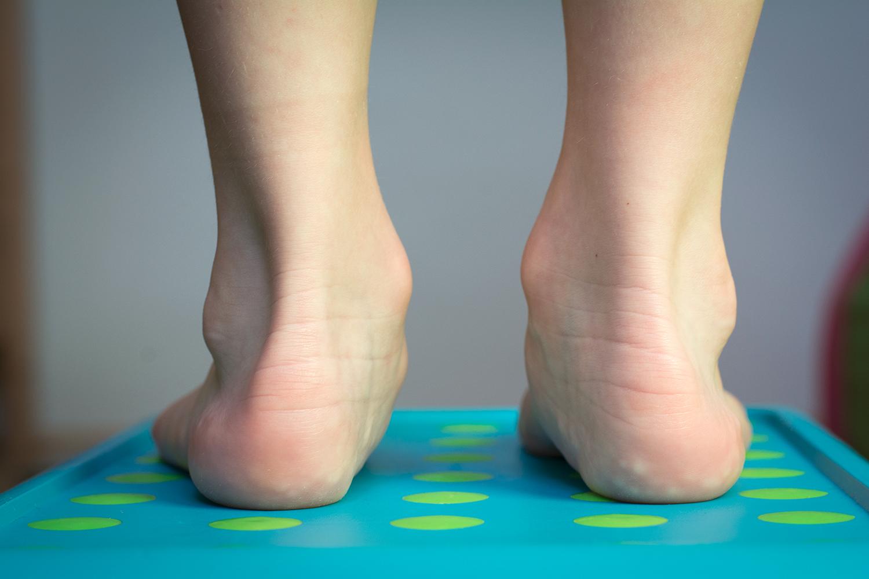 ed9dbef1fb81 Dětská plochá noha - řešení - cviky - tejpování - Vanda Schreierová