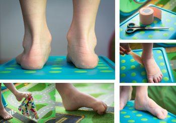 Dětská plochá noha